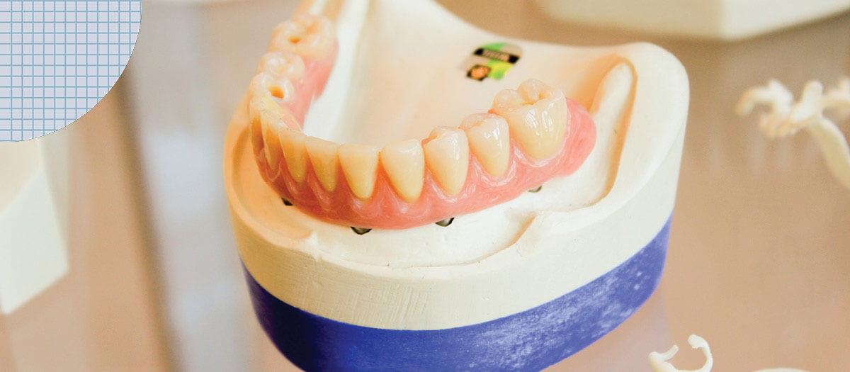 False teeth for implants