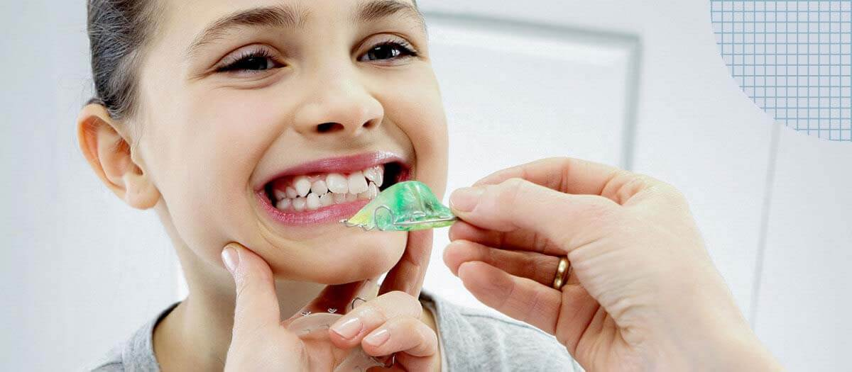 girl placing retainer in her mouth